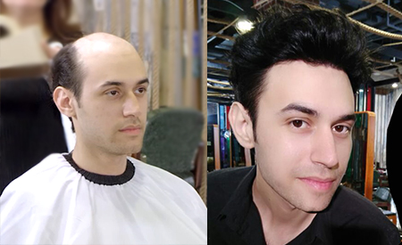 Ultra Thin Skin Hair Systems for Men