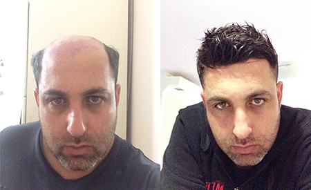 Hair System Before And After Photos Hairpiece Transformation