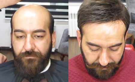Hairpieces for Men with Lace Front and Skin Back and Sides