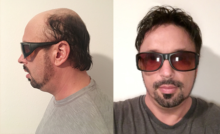 Lace Front Hair Systems for Men