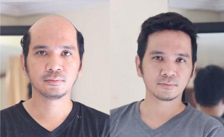0.03 MM Ultra Thin Skin Hair Systems