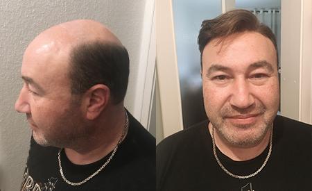 Custom hairpiece for men