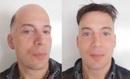 Superskin hair replacement system
