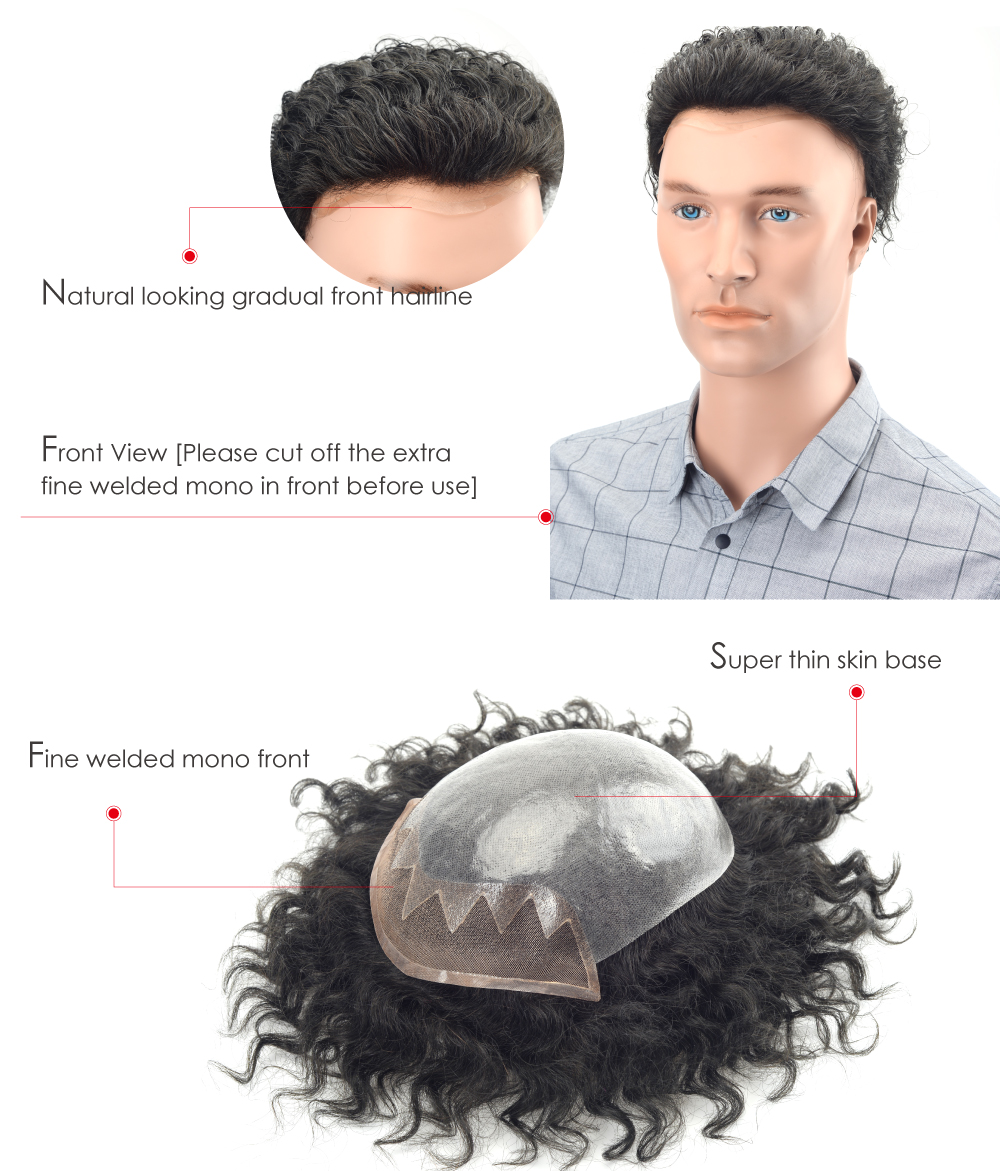 Mono Front Skin Hair Replacement System