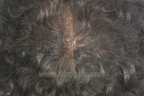 all thin skin hair system