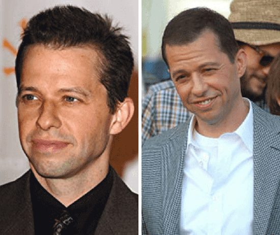 15 Male Celebrities With Hair Loss & Baldness [Before