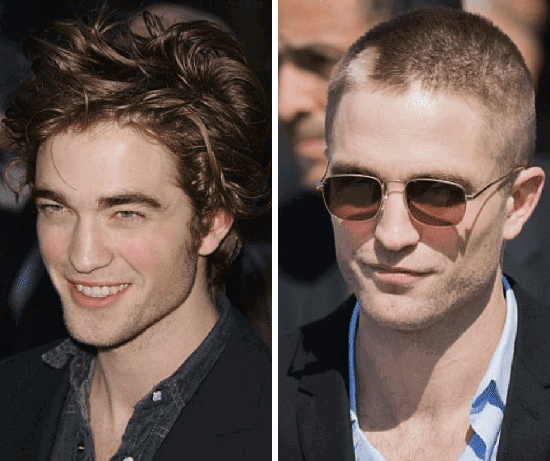Celebrities with hair loss