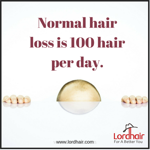 Extreme Hair Loss 10 Useful Hair Care Tips Practices For Men