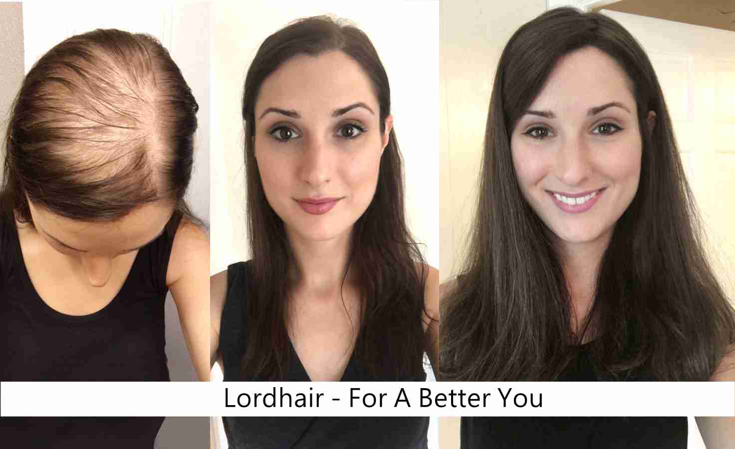 hair system before & after
