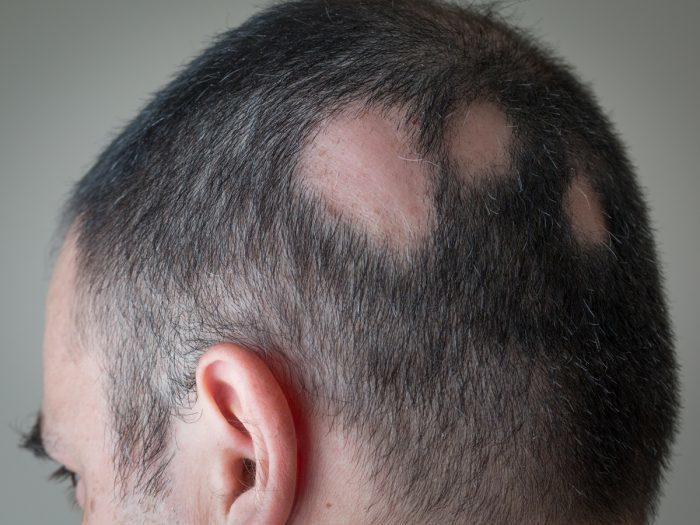 Patchy Hair Loss