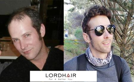 Men's toupee, hair systems