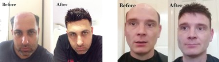 lordhair-mens-hair-systems-before-and-after