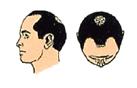 lordhair-partial-hair-loss