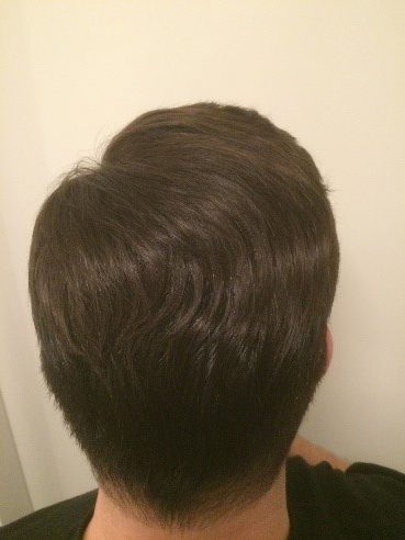back look after wearing hair system