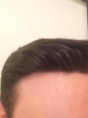 front hair line