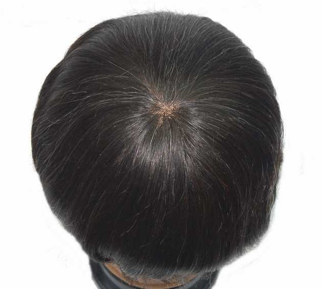 fine welded mono with poly coating on sides back,lace front hairline hair replacement system