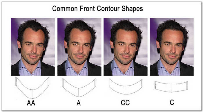 hair replacement front contour shape