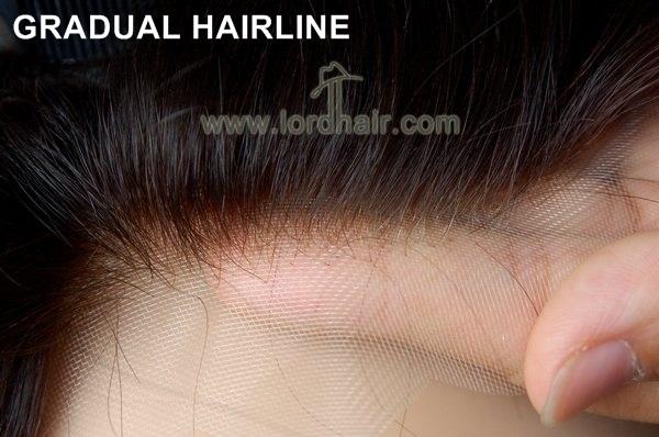 gradual hairline