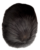 hair replacement right crown