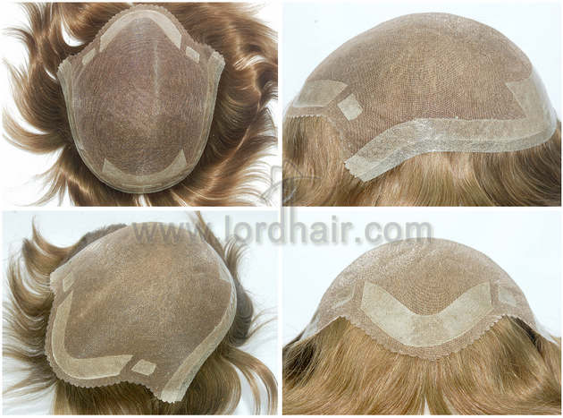 mono hair replacement system with skin perimeter